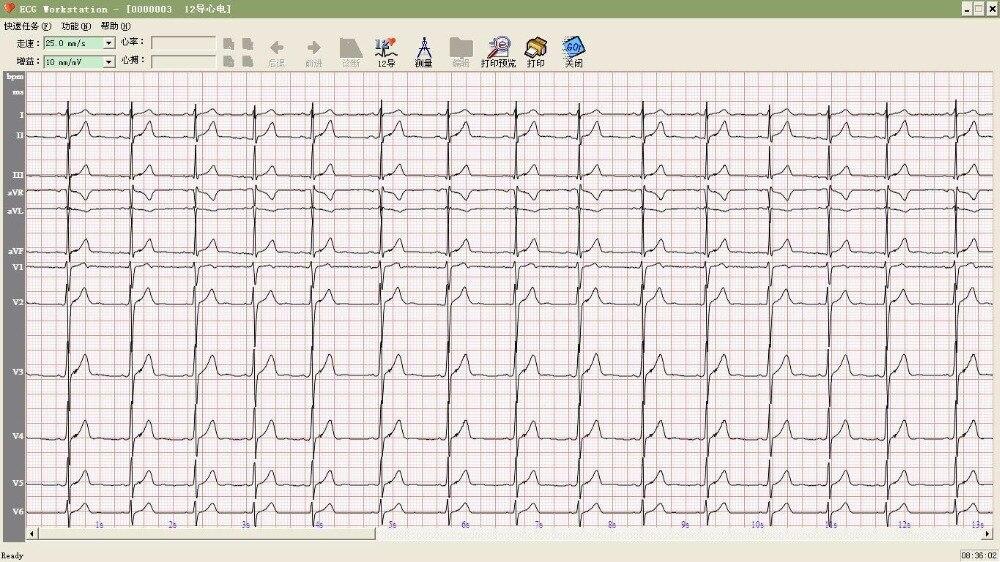 CONTEC 8000 ECG WORKSTATION TREIBER HERUNTERLADEN