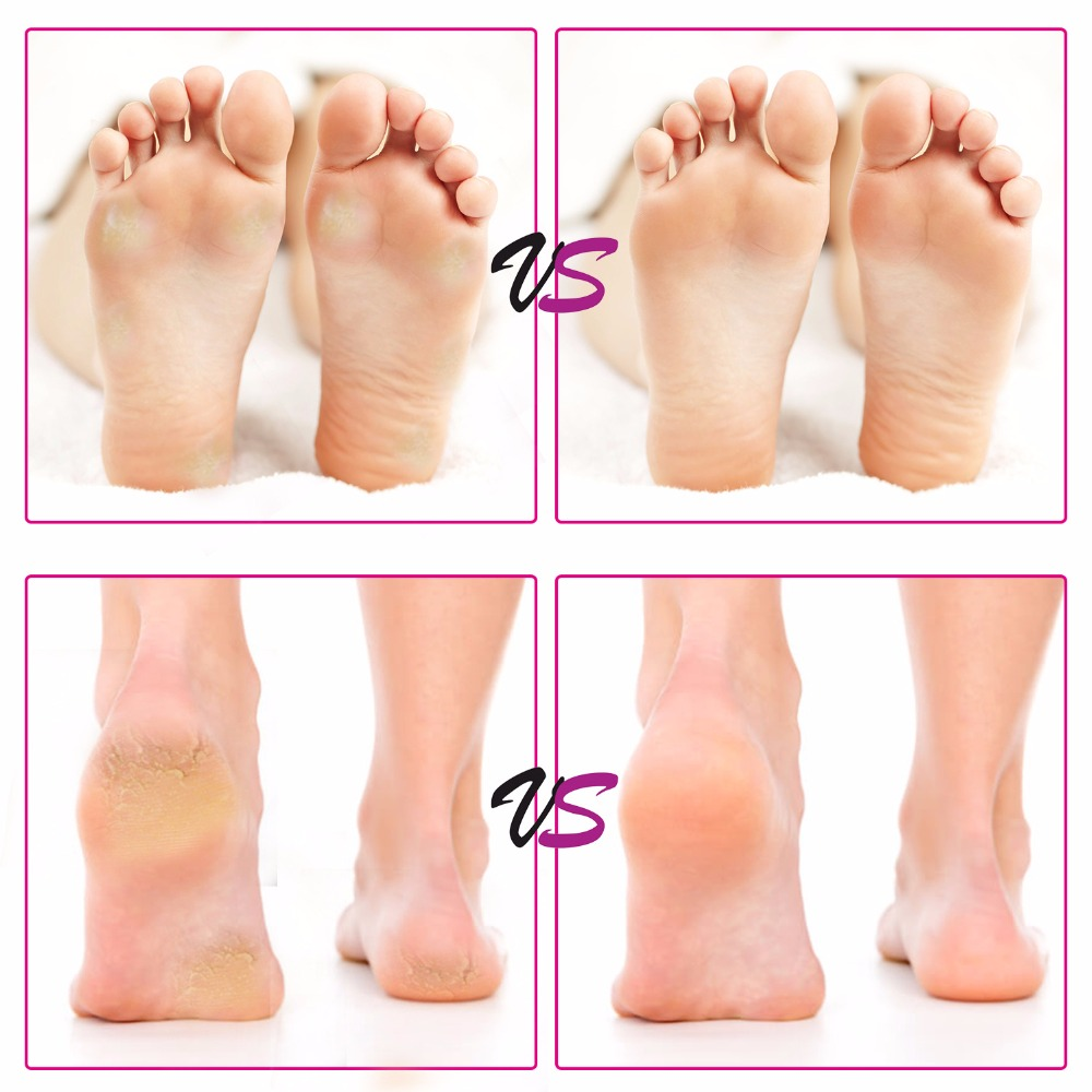 foot care (13)