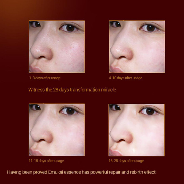 Emu Oil Facial Anti Wrinkle Face Cream Lifting Firming Whitening Moisturizing Skin Care Repair Treatment Freckle Removal beauty