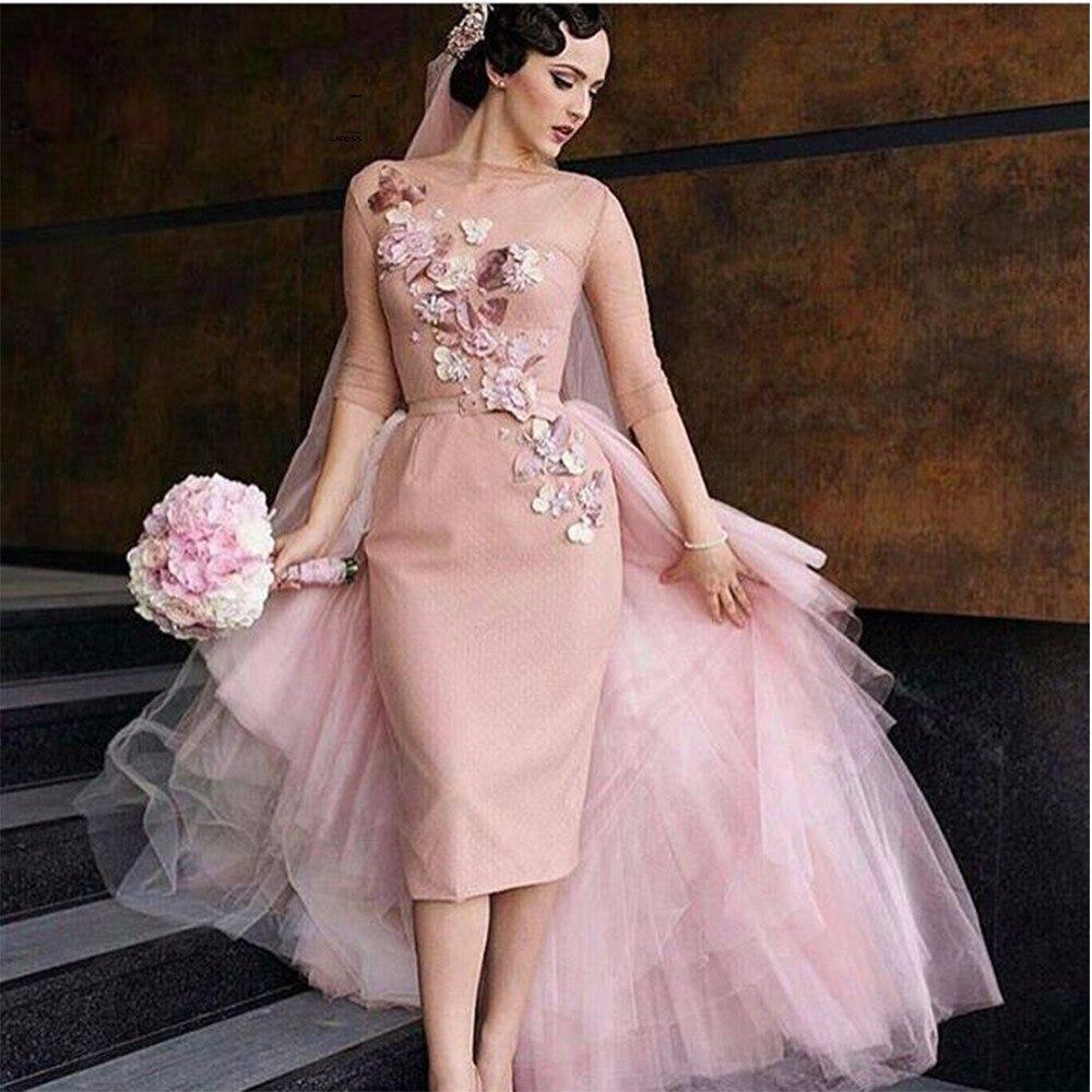 Famoso Wedding Dress With Removable Skirt Patrón - Colección de ...