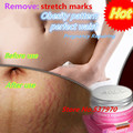 Powerful stretch mark repair cream postpartum stretch mark repair obesity , Pregnant Neccessary Products Skin Care