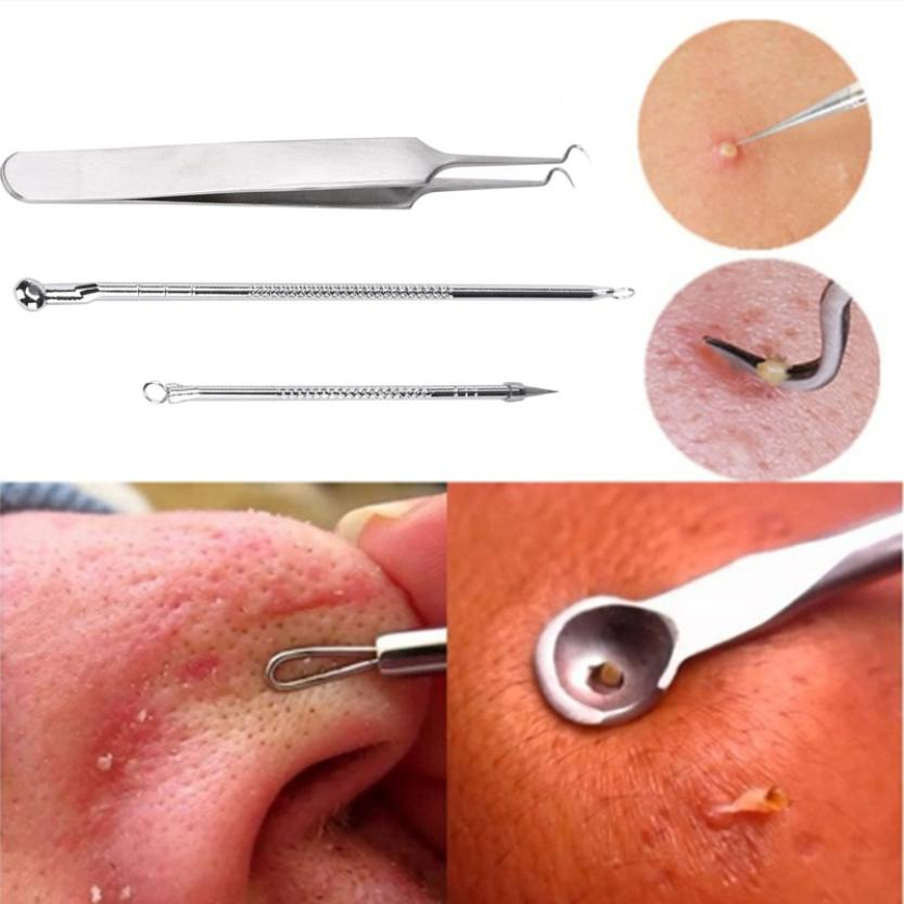 New 3Pcs Stainless Steel Silver Blackhead Facial Acne Spot Pimple Remover Extractor Tool Comedone oc12