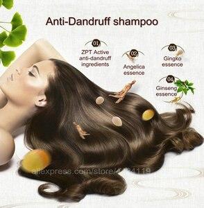 Image 2 - HOT Shampoo Hair Care Anti Dandruff Strong Antipruritic Hair Treatment Hair Products Dermatitis Hair Dandruff Repair Health care
