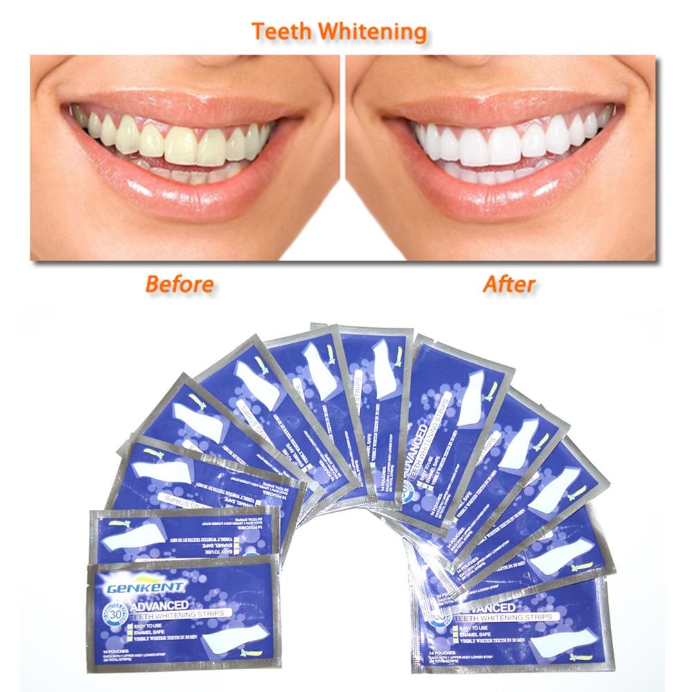 GENKENT 14Pairs Zobu balināšanas sloksnes Gela kopšana Mutes higiēnas tīrīšanas līdzekļi Zobu balināšanas zobu balināšanas balinātāji Zobu balināšanas rīki
