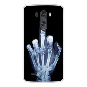 Image 5 - حقيبة لجهاز LG G3 لينة سيليكون TPU بارد تصميم منقوشة الطلاء الهاتف غطاء ل LGG3 D855 حالات كوكه
