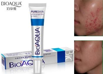 By DHL 200pcs BIOAQUA Acne Cream Light Print Scar Removal Face Cream Pure Skin Care Whitening Facial Skin Care