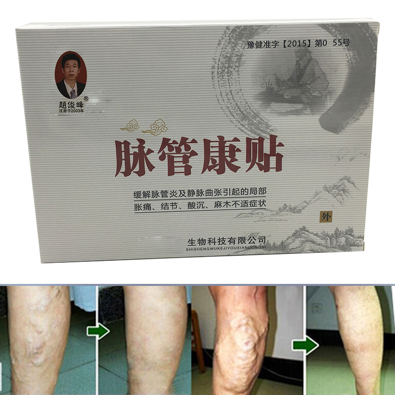 6Packs Varicose Veins Cure Patch Vasculitis Natural Solution Chinese Herbal Treatment Mai Guan Yan Acid Bilges Itching 1 box blood uric acid balance tea lower uric acid treatment gout remedios natural acido urico