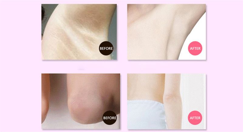 Armpit Whitening Body Cream