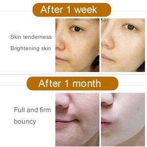 Image 2 - FONCE Tiefe Rpair Antioxidans Gesichts Serum Erleichtern melanin Haut Bleaching Anti aging Natürliche Astaxanthin primäre flüssigkeit 30ml