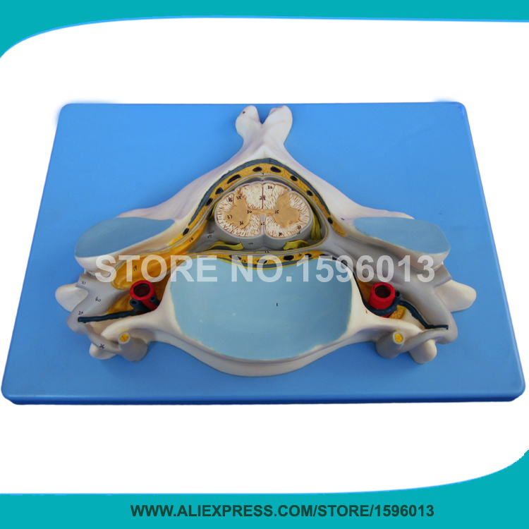 все цены на HOT Fifth Cervical Vertebra with Spinal Cord and Nerve, Vertebrae Model в интернете