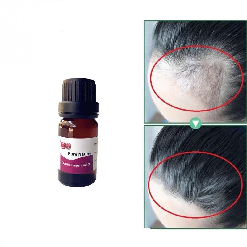 2019 Beard Growth Essential Oil Beards Hair Thicker Garlic Essence Oil Mustache Thick Sideburn Treatment Sunburst Alopecia Serum