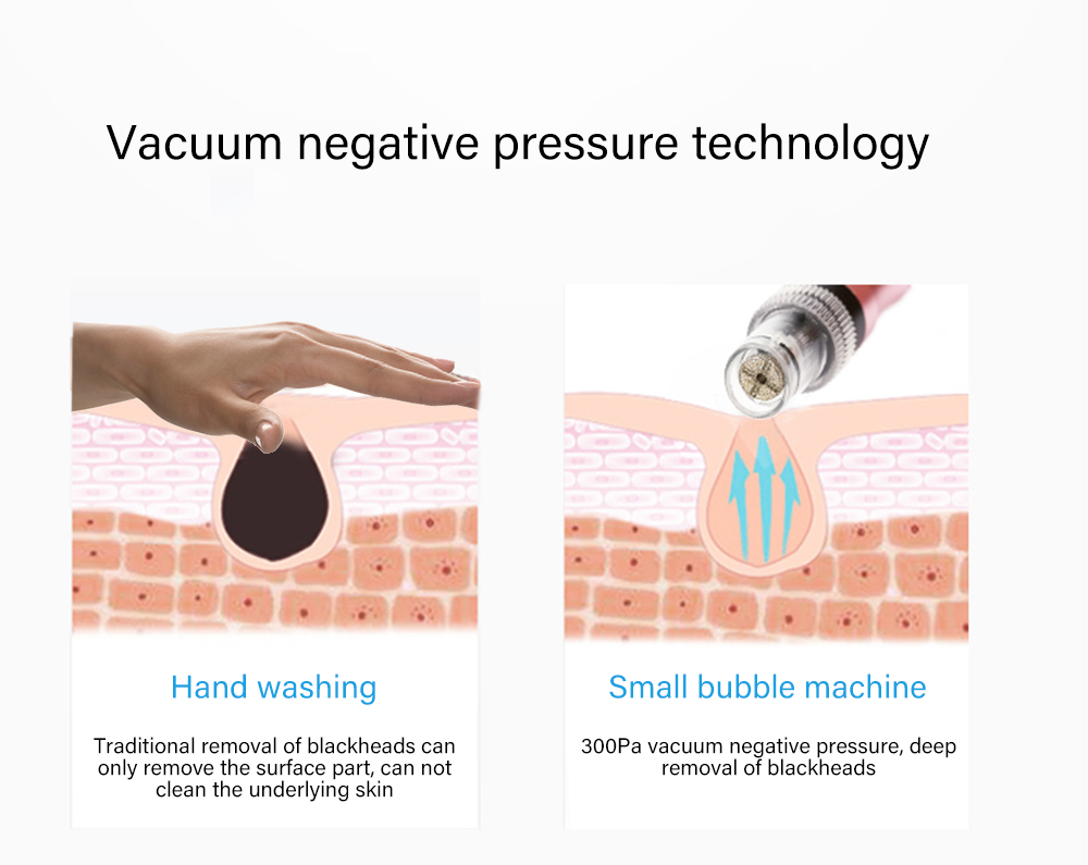 Image 5 - Small Bubbles Beauty Device Suction Blackhead Removal Vacuum Moisturizing Micro Bubble Oxygen injection Machine for Home Use-in Face Skin Care Tools from Beauty & Health