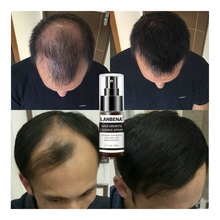 Hair Growth Essence Spray Growth Oil Preventing Baldness Anti Hair Loss