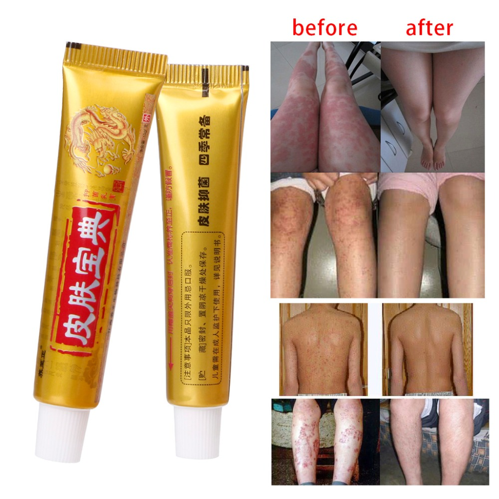 Natural Chinese Medicine Herbal Anti Bacteria Cream Psoriasis Eczema Ointment Treatment