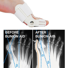 1 Pair Toe Straightener Bunion Splint Movable, Protection and Correction for Feet Affected By Hallux Valgus, Foot care Tool