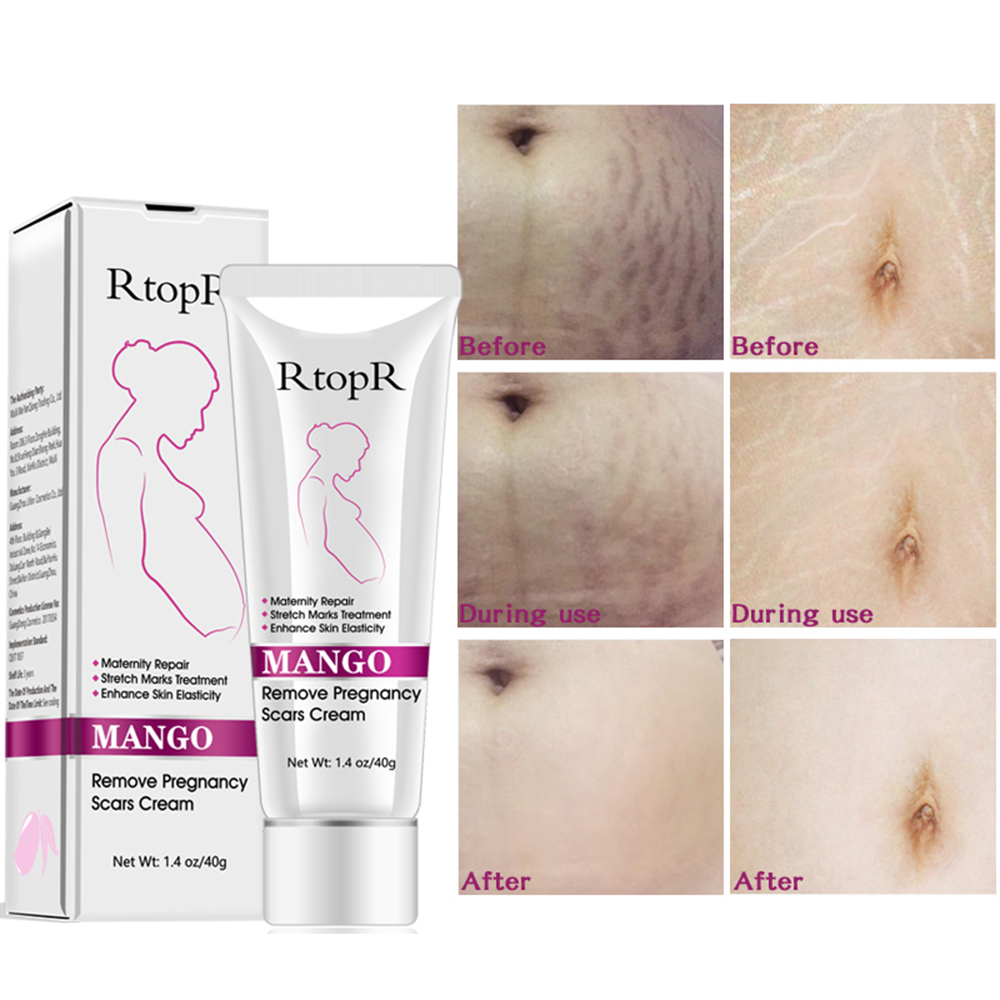 Natural Mild Non-irritating Mango Stretch Mark Cream For Pregnancy Repair Scar Slack Line Abdomen Stretch Marks Cream 40ml TSLM2