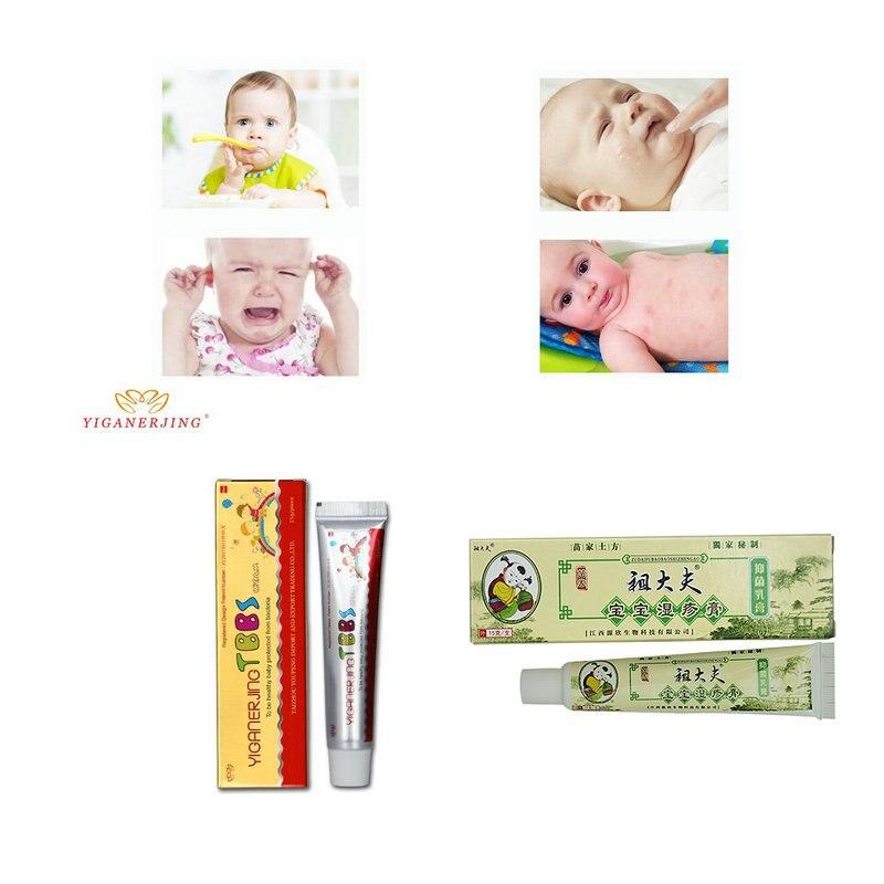 10 PCS With Box Zudaifu Baby Psoriasis Cream Dermatitis Eczema Treatment  Baby Eczema Cream Nappy Cream Skin Cream For Kids