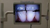 Новый зубные 6 светодио дный интраоральной Камера с 15 ЖК дисплей монитор и стоматологический монтажный зажим