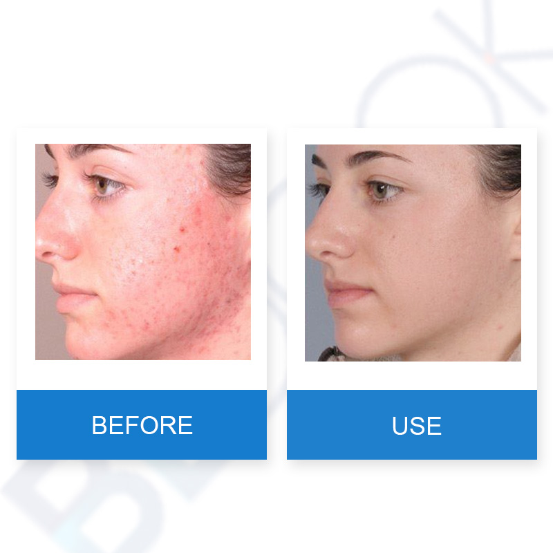 How do i reduce facial redness