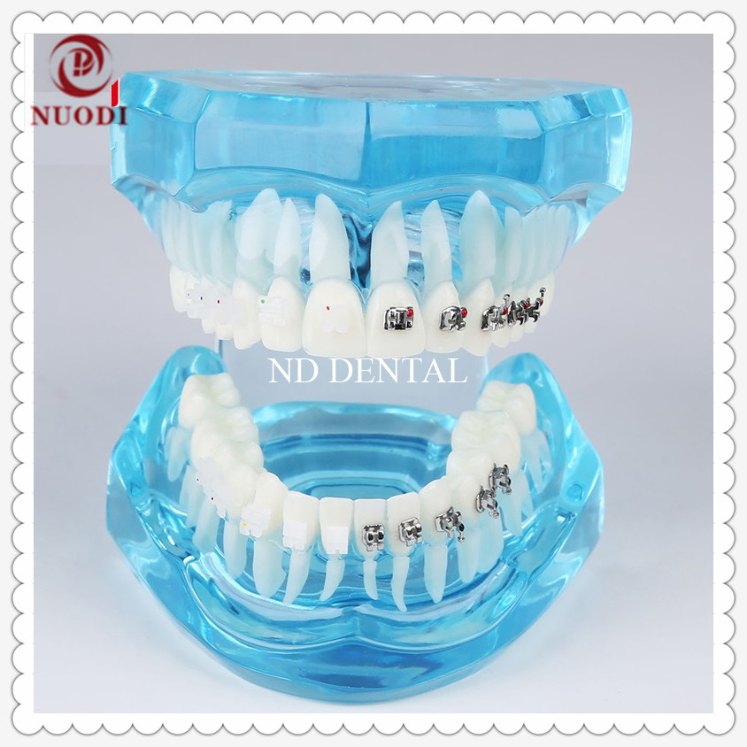 Dental Study teeth model/Orthodontic teeth Model with Metal and ceramic bracket/Education Teeth model M3003/dental brace model transparent dental orthodontic mallocclusion model with brackets archwire buccal tube tooth extraction for patient communication
