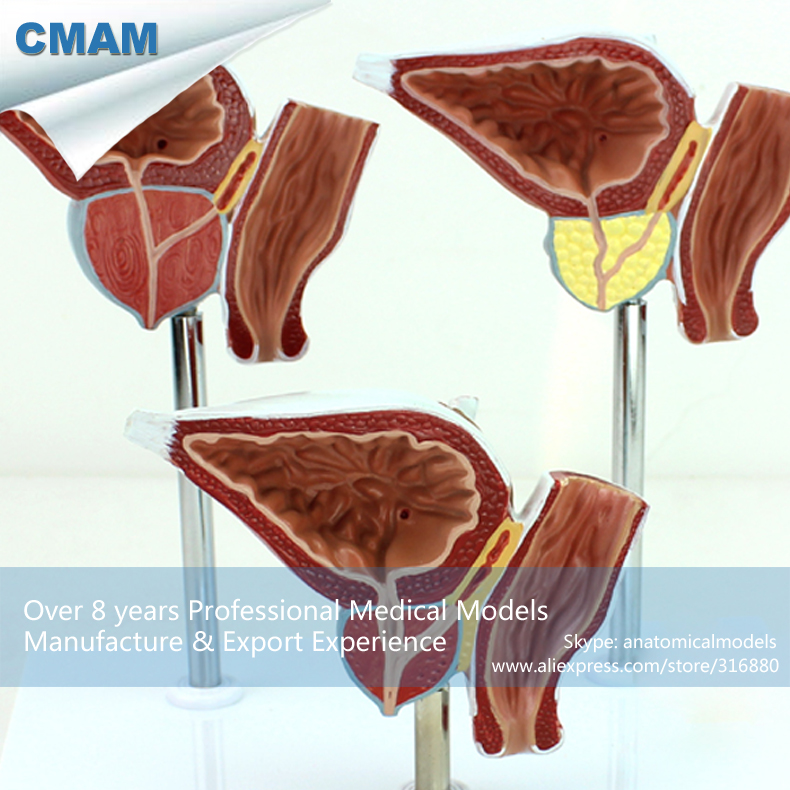 12427 CMAM-UROLOGY07 Normal and Diseased Prostate Gland Anatomy Model, Medical Science Educational Teaching Anatomical Models 12400 cmam brain03 human half head cranial and autonomic nerves anatomy medical science educational teaching anatomical models