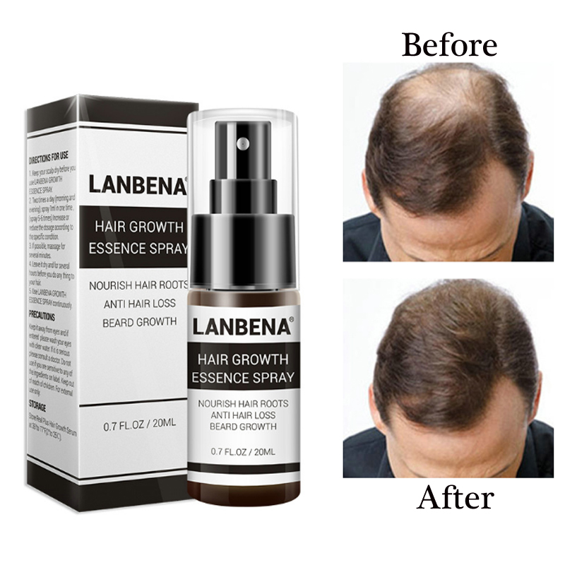 LANBENA Hair Growth Essence Fast Powerful Hair Care Regrowth Essence Hair Loss Treatment for Men and Women Herbal Supplements image