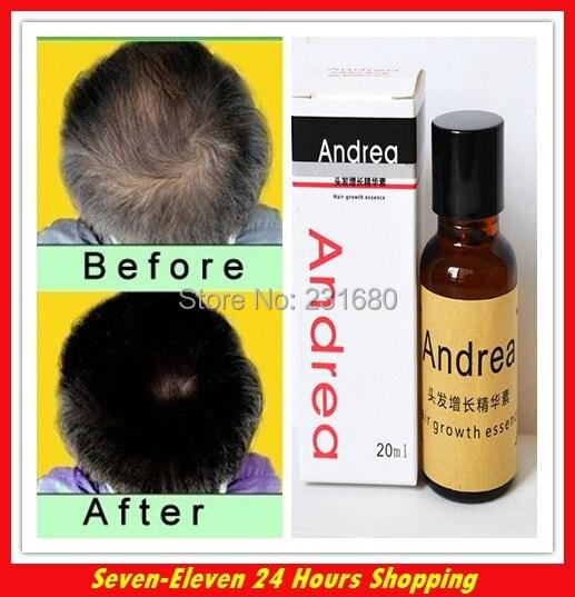 5dab3fb3 Hot Sale Andrea Hair Fast Growth Essence Oil Hair Loss Liquid Dense Anti  Hair Loss Products
