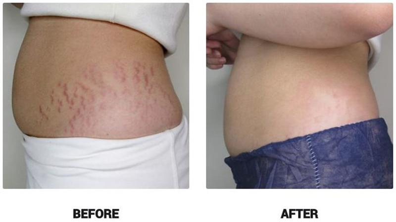 Купить с кэшбэком Organic Rose Oil Scars Stretch Marks Acne Hyperpigmentation Fine Lines Extreme Dry Skin Beauty Essentials Oils for Massage