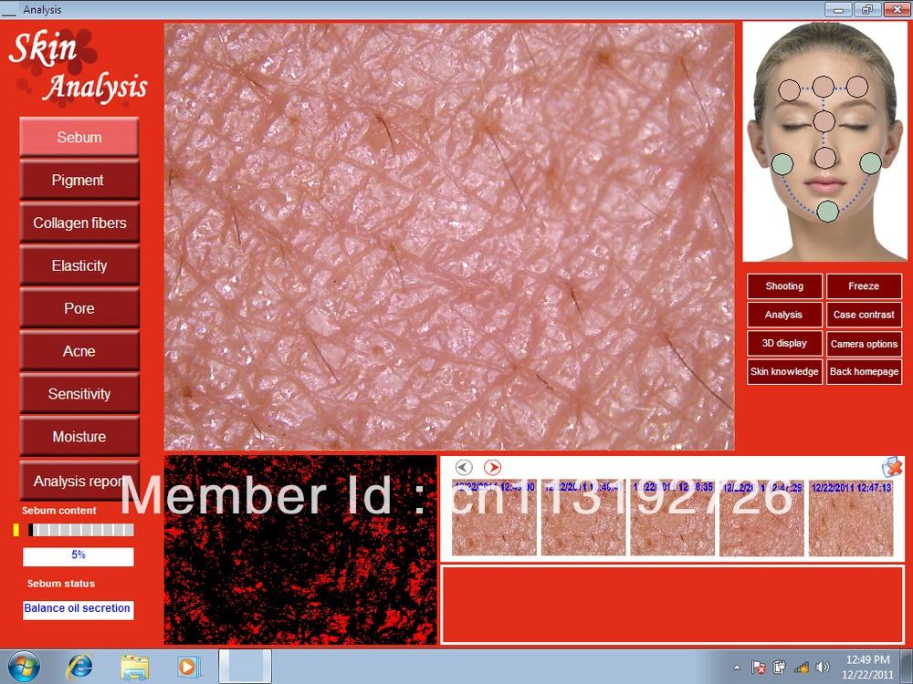 Skin Analysis Machine 5.0 MP High Resolution Digital CCD USB Skin Camera Skinscope Skin Analyser Skin Scope Diagnosis Device DHL