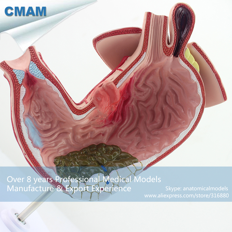 12537 CMAM-STOMACH04 Medical Anatomy Human Stomach Gastric Disease Model ,  Medical Science Educational Anatomical Models 12400 cmam brain03 human half head cranial and autonomic nerves anatomy medical science educational teaching anatomical models