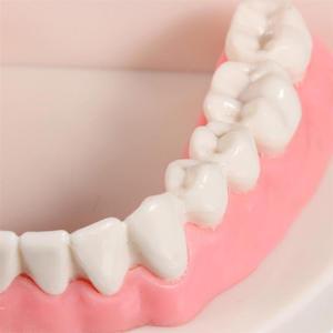 Image 5 - Pro Dental Studie Lehre Weiß Zähne Modell Standard Karies Zahn Pflege Oral Medizinische Bildung Zahnarzt Ausrüstung Mundpflege Werkzeug