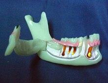 Advanced Simulation Model of Mandibular Tissue Decomposition,Simulation Model of Mandibular Structures