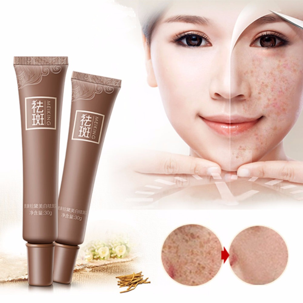 Freckles Melasma Face Skin Whitening Fade Cream Lightening