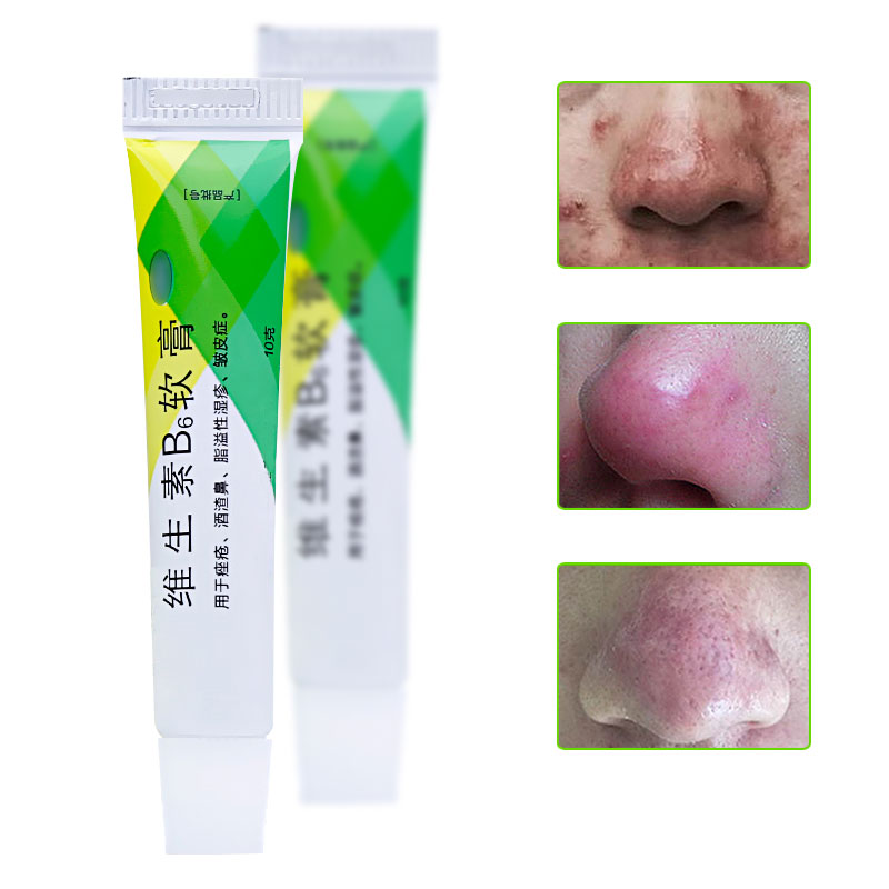 Rosacea Treatment Face Cream Chinese Herbal Red Nose Acne Remover