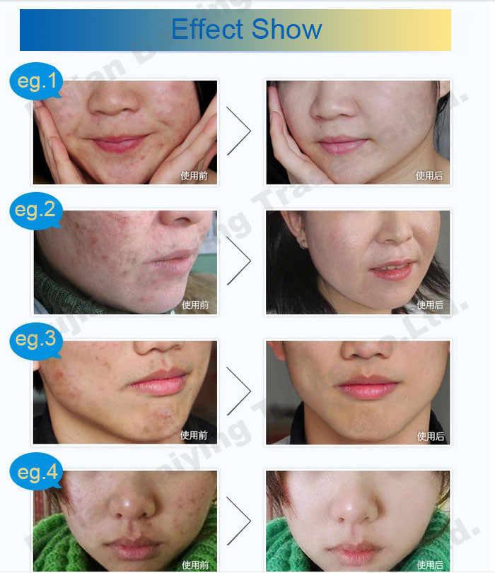 3/57/139/284 pièces 30g acné rosacée taches de rousseur élimination crème de nuit Gel de blanchiment de la peau anti bactérien réduire la pigmentation