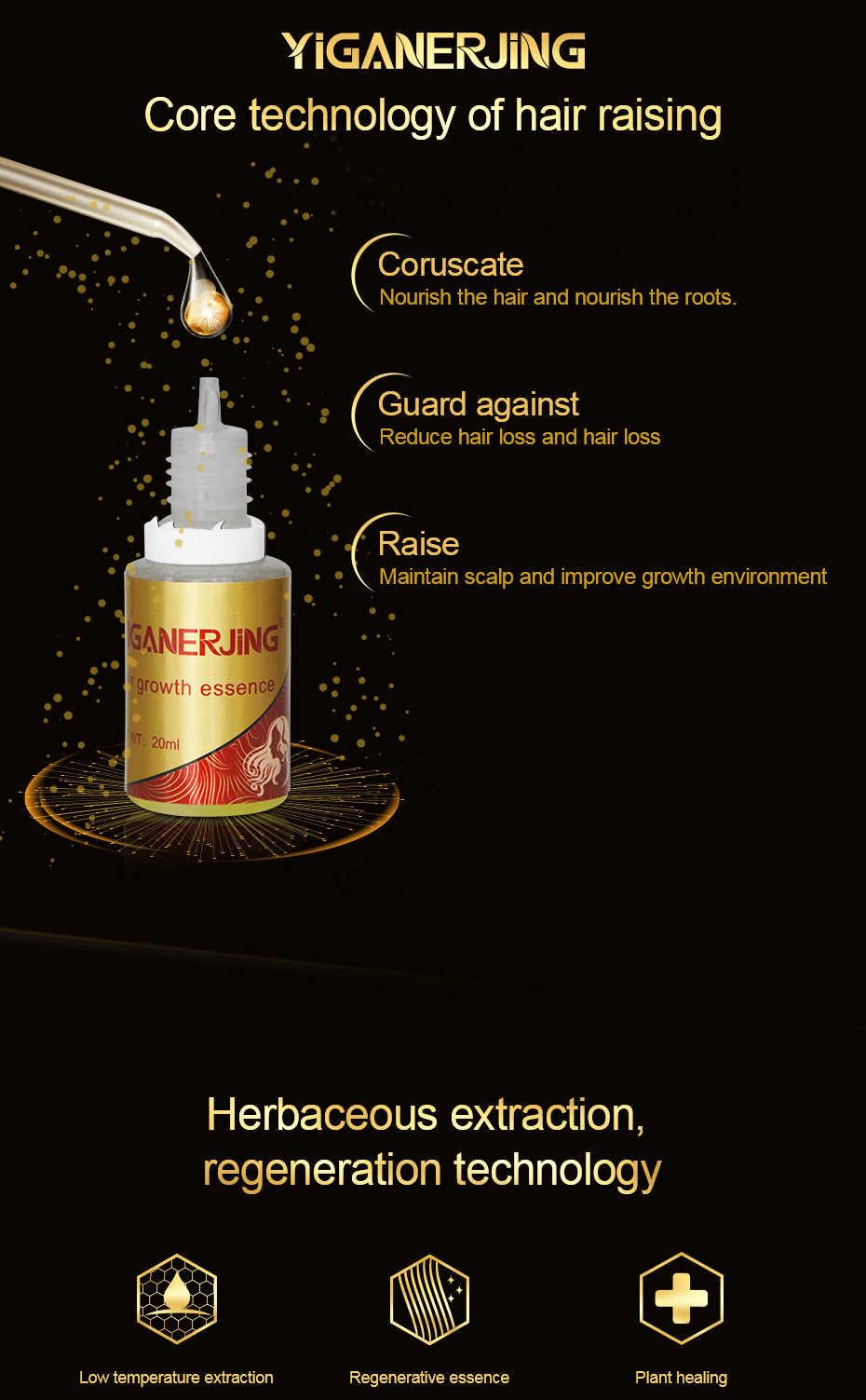 20019 neue Schnelle Leistungsstarke Haar Wachstum Essenz Öl Flüssigkeit Behandlung Gegen Haarausfall Haarpflege Produkte 20 ml TSLM1