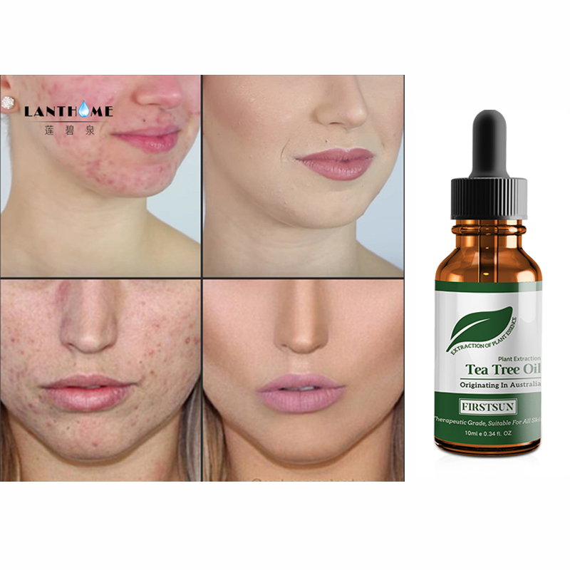 100% Tea Tree Pure Essential Oil Face Care Skin Acne Treatment Oil Blackhead Remover Anti Scar Spots Facial jojoba oil image