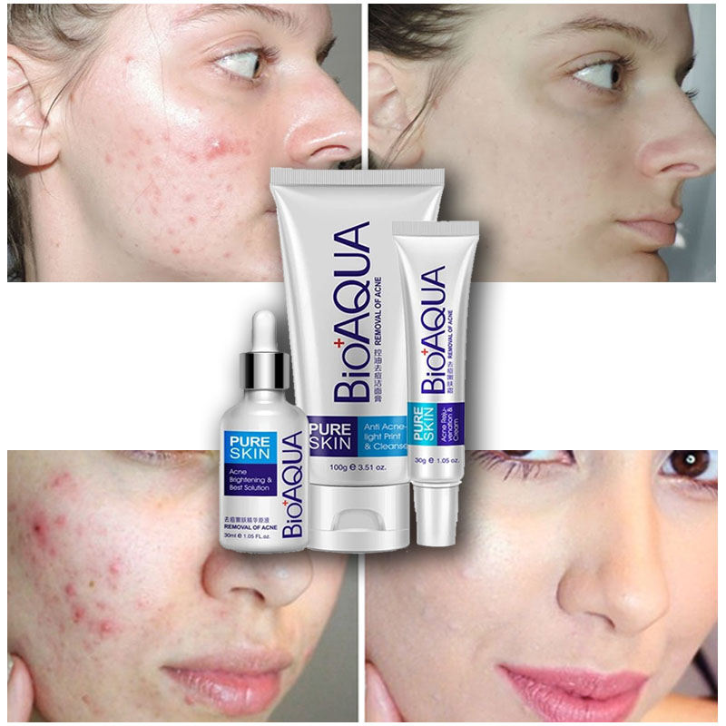 BIOAQUA 3 kins / szett Arcápoló javítás Akne Scar krém Acne Anti essence Bőrápolás mély tiszta termék