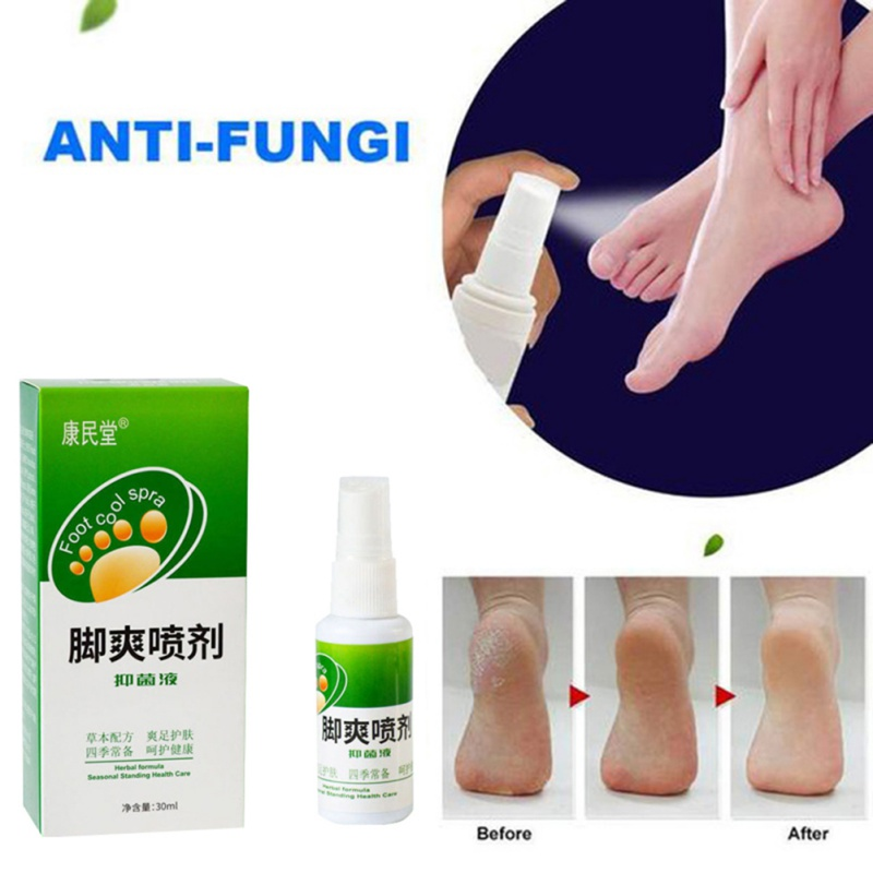 30ml Remover Remove Foot Plaster Odor Sweat Antibacterial Bacteriostatic Plant Herb Spray For Four Seasons