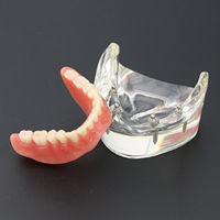 1Pc Dental Teeth Study Model Overdenture Inferior 4 Implant Demo Model 6002 02