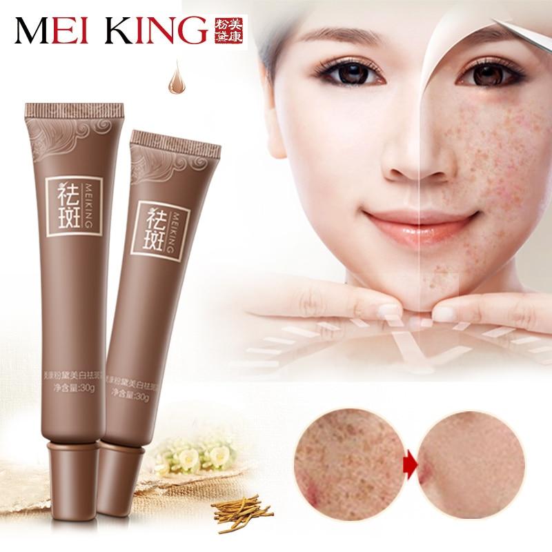 Dark Spot Corrector Skin Whitening Fade Cream Lightening Blemish Removal Serum Reduces Age Spots Freckles Melasma Face Cream
