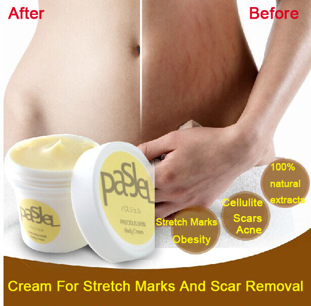2pcs/lot Pasjel Cream For Stretch Marks And Scar Removal Powerful To Stretch Marks Maternity Skin Body Repair Cream