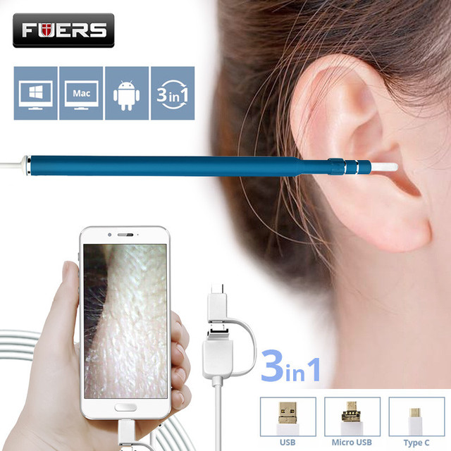 Fuers 3 In 1 Otoscope Endoscope Camera 720p Hd Visual Ear