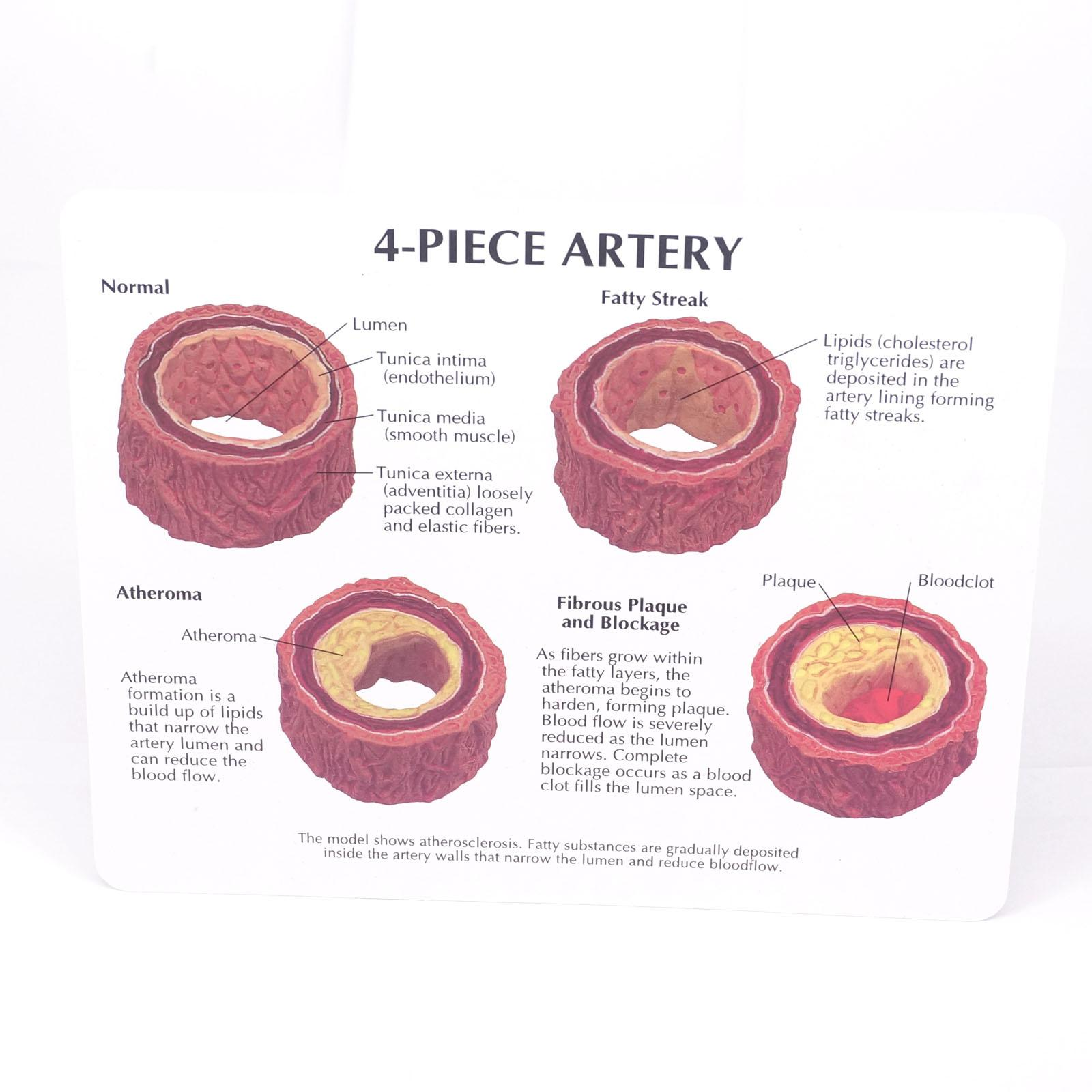 4 Stage Doorsnede Menselijk Slagader Anatomisch Vasculaire Occlusie ...