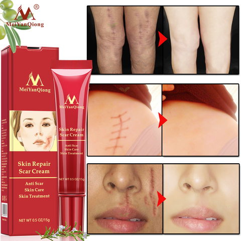 MeiYanQiong Eco-friendly Acne Scar Stretch Mark Repair Cream Treatment Blackhead Whitening Cream Skin Repair Face Cream TSLM2 Pakistan
