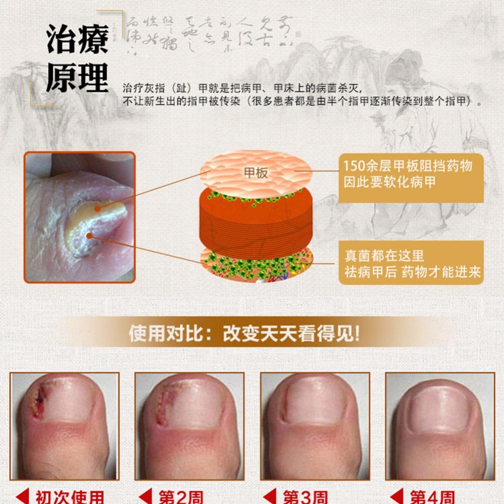 Original Fungal Nail Treatment Essence Nail and Foot Whitening Toe Nail Fungus 5
