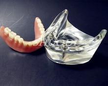 Dental Overdenture Interior Mandibular Lower with 2 Implants Restoration Teeth Study Teach Model lower jaw of adult dentition model teeth dental model