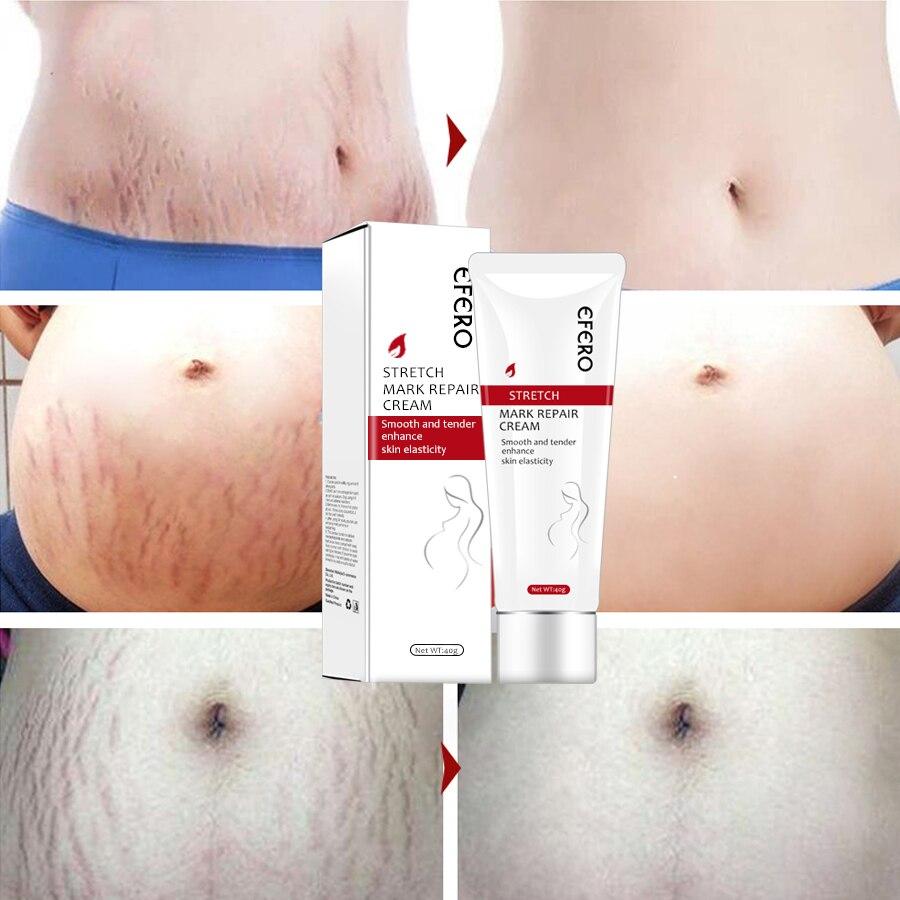 EFERO Stretch Marks Removal Cream Maternity Repair Cream Remove Pregnancy Scars Acne Treatment Anti Winkles Firming Body Cream
