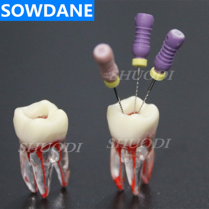 1:1 Resin Dental Endodontic Student Study Practice Model With Colored Root Canal And Pulp Transparent Without Files