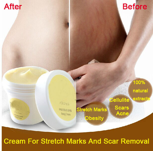 <font><b>Thailand</b></font> pasjel precious Skin Body Cream stretch marks remover scar removal powerful postpartum obesity pregnancy cream image